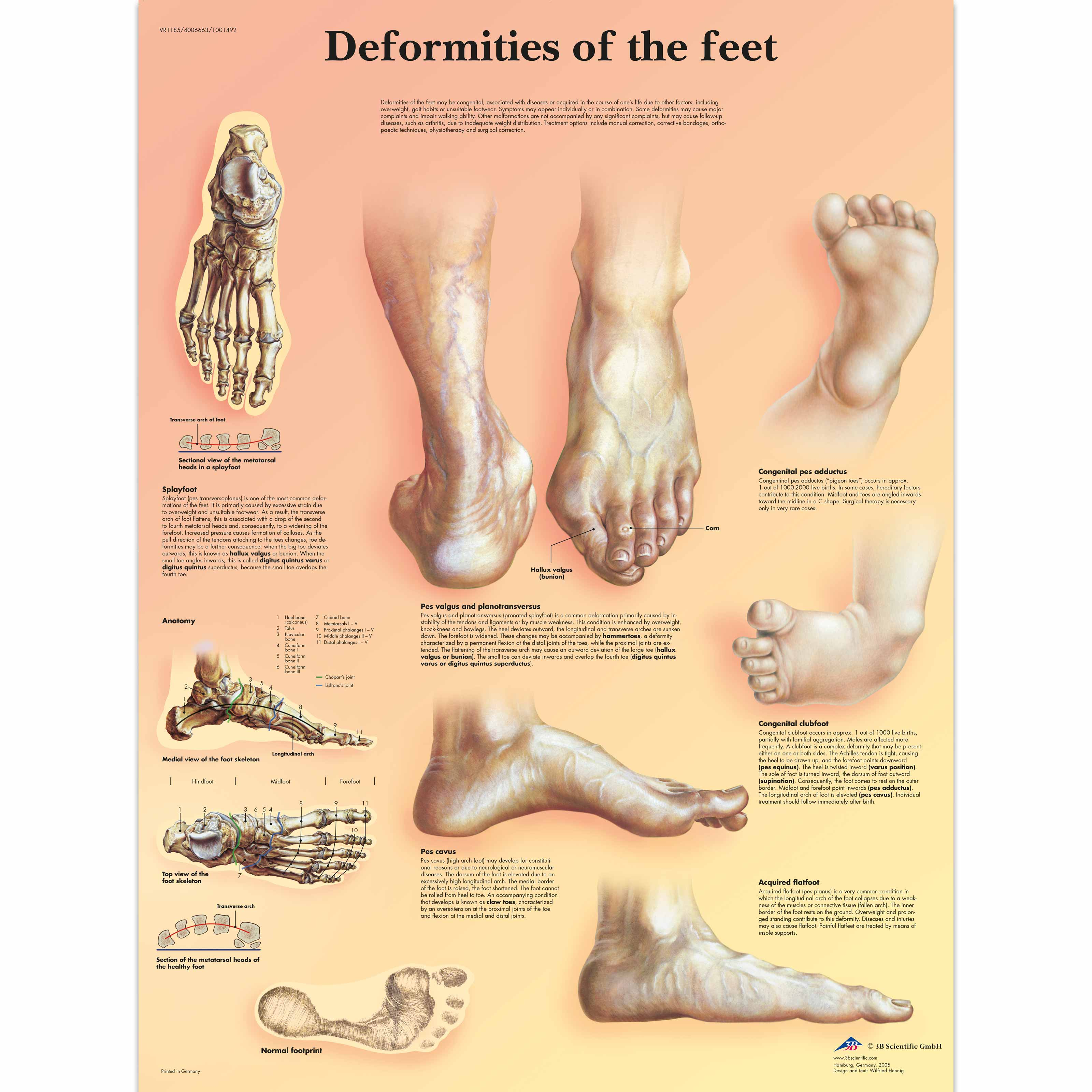 deformities of skeleton Here is a list of 10 physical deformities most of these physical features are a result of some disease or medical condition that the person battles with.