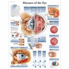 Diseases of the Eye Chart,VR1231L