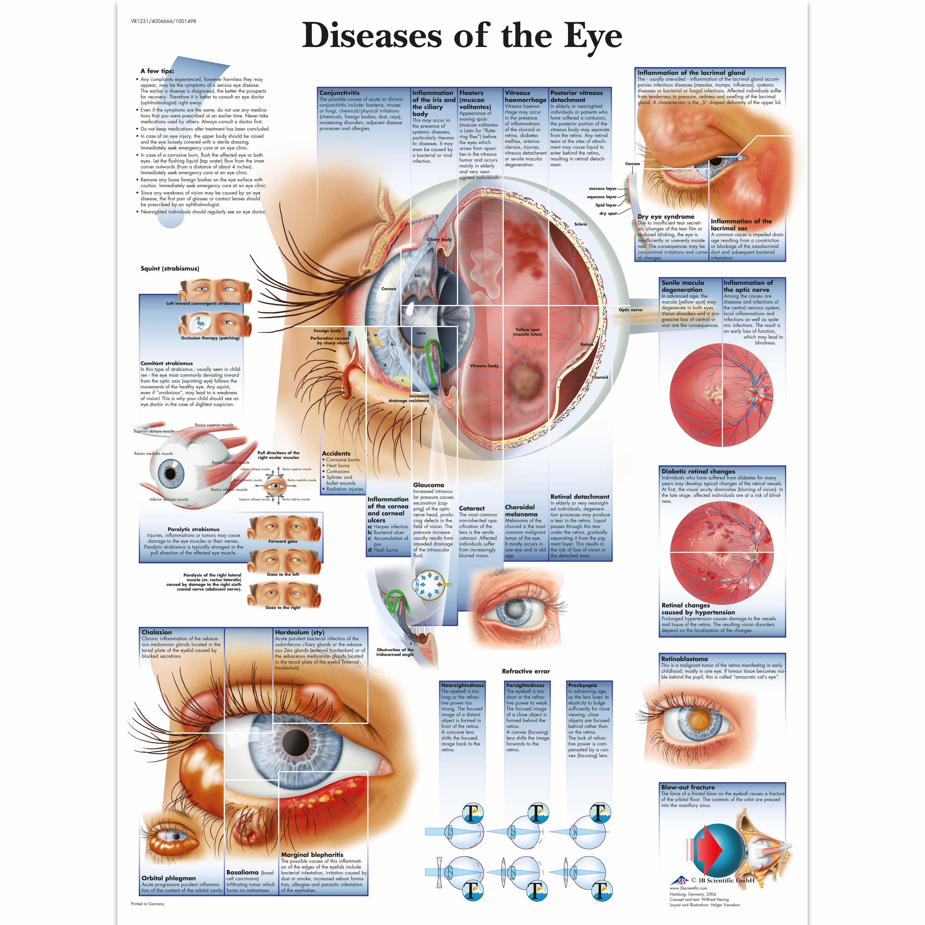 Diseases of the eye chart 4006666 vr1231uu ophthalmology 3b diseases of the eye chart geenschuldenfo Choice Image