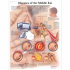 Diseases of the Middle Ear Chart, 4006670 [VR1252UU], Ear, Nose and Throat (ENT)