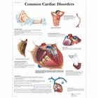 Common Cardiac Disorders Chart, 4006680 [VR1343UU], Cardiovascular System