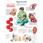 Hypertension Chart,VR1361L