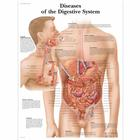 Diseases of the Digestive System Chart, 4006691 [VR1431UU], Digestive System