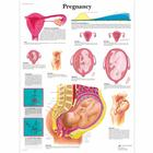 Pregnancy Chart, 1001572 [VR1554L], Pregnancy and Childbirth