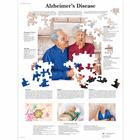 Alzheimer's Disease Chart, 1001592 [VR1628L], Brain and Nervous system