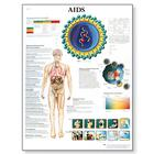 AIDS Chart, VR1727UU, Parasitic, Viral or Bacterial Infection