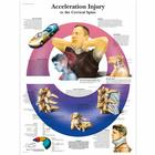 Acceleration Injury to the Cervical Spine Chart,VR1761UU