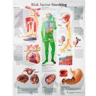Risk factor Smoking, VR1791UU, Anatomical Charts