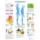 L'ostéoporose, 1001634 [VR2121L], Arthritis and Osteoporosis Education