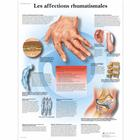 Les affections rhumatismales,VR2124L