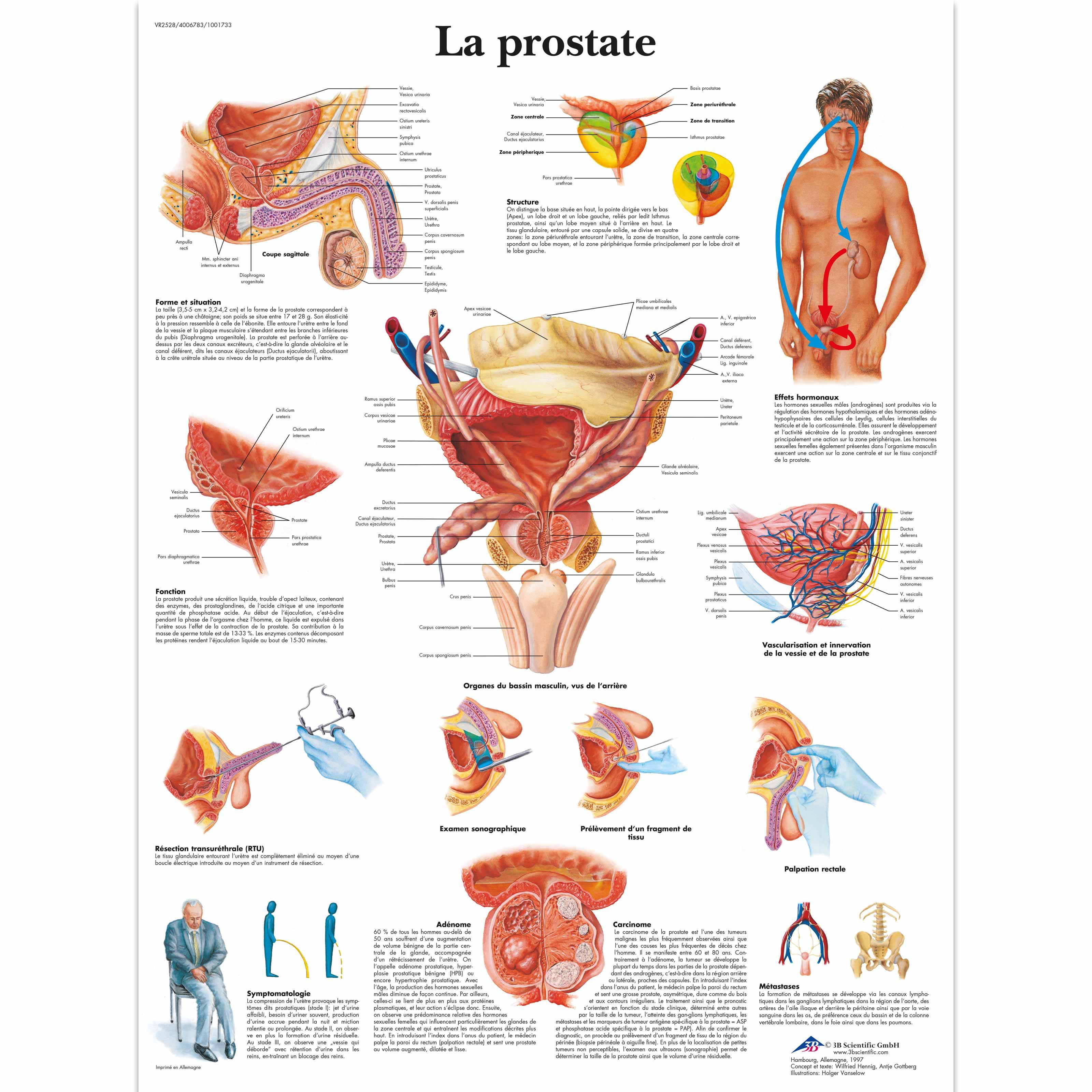 La prostate - 1001733 - 3B Scientific - VR2528L - Urinary