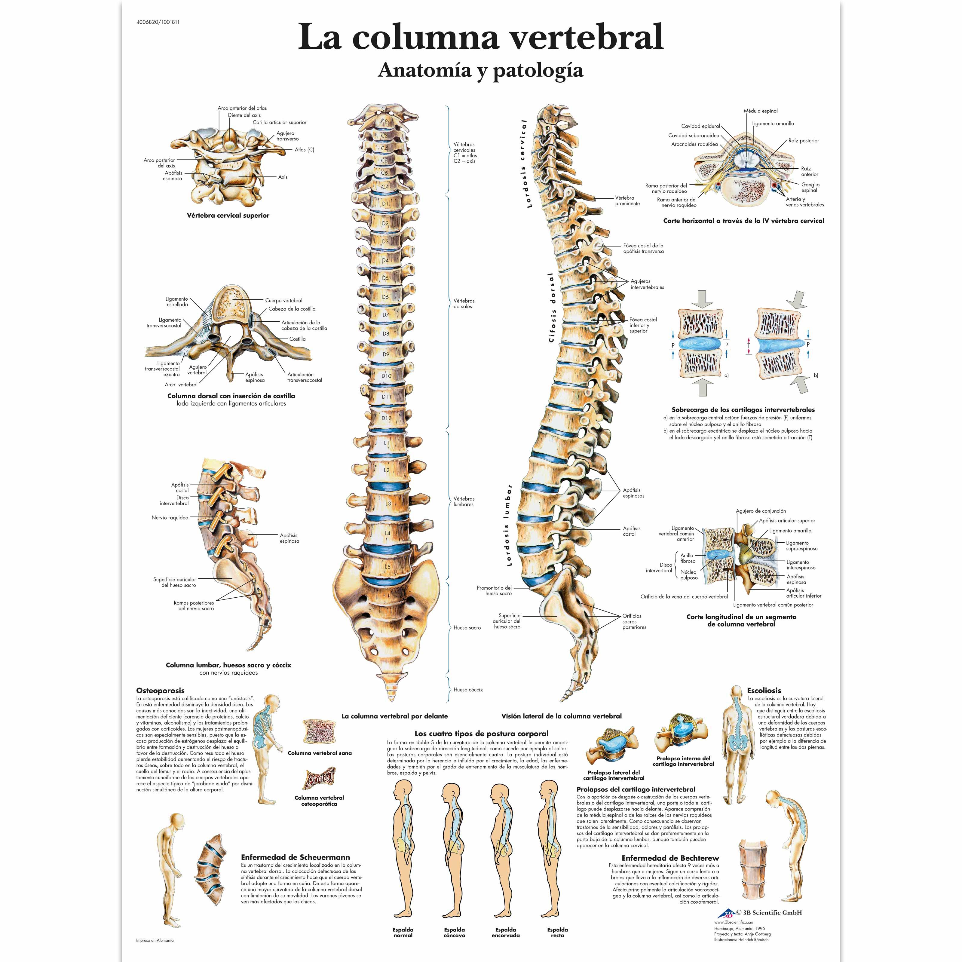 Dorable Anatomía De La Columna Modelo - Anatomía de Las Imágenesdel ...