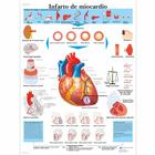 Infarto de miocardio, 4006842 [VR3342UU], Heart Health and Fitness Education