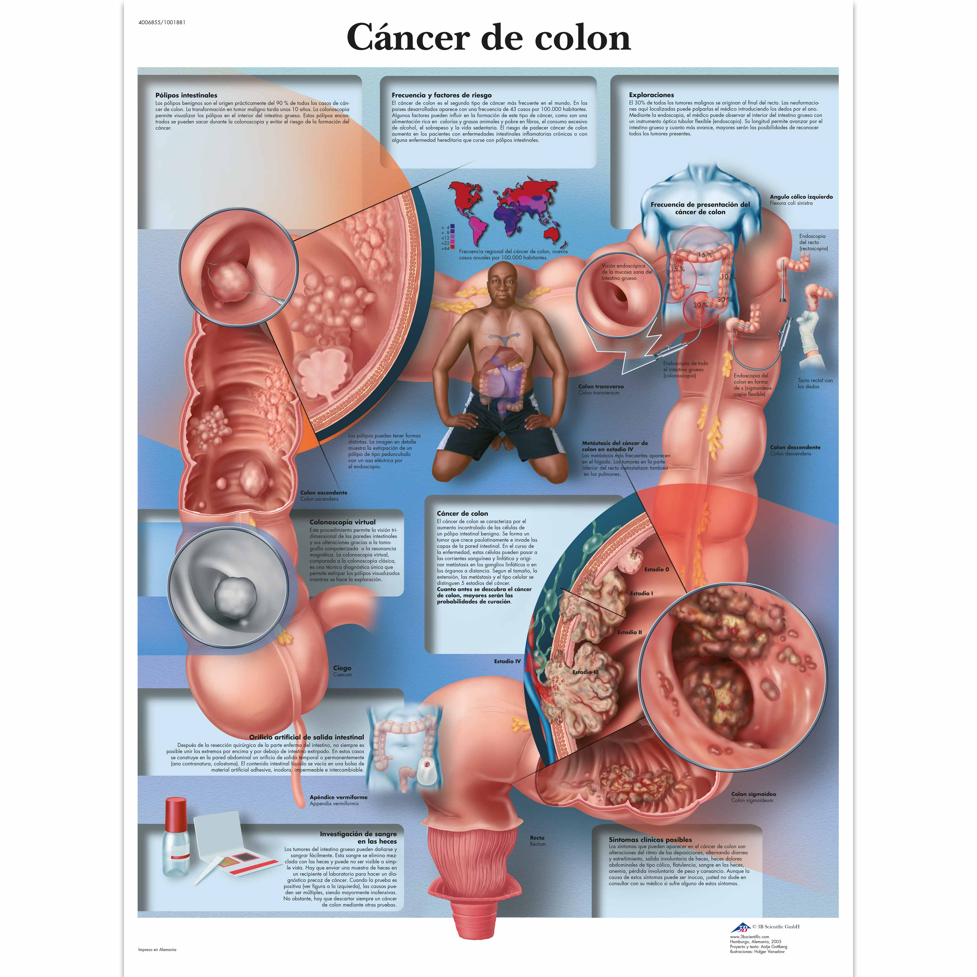 anatomical charts and posters anatomy charts pathology charts colon cancer chart. Black Bedroom Furniture Sets. Home Design Ideas