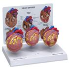 3-Mini Heart Model Set, 1019530 [W33365], Human Heart Models