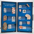 The Consequences of HIV/AIDS - 3D Display,W43090