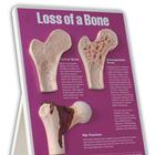 Loss of Bone Easel Display, 3004674 [W43124], Arthritis and Osteoporosis Education