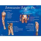 Intramuscular Injection Sites Poster, 1018427 [W44783], Injections and Punctures