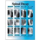 Spinal Decay Chart - Left Facing, Laminated, W57501, Skeletal System