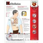 Defibrillation Chart - Laminated, W59500, Anatomical Charts