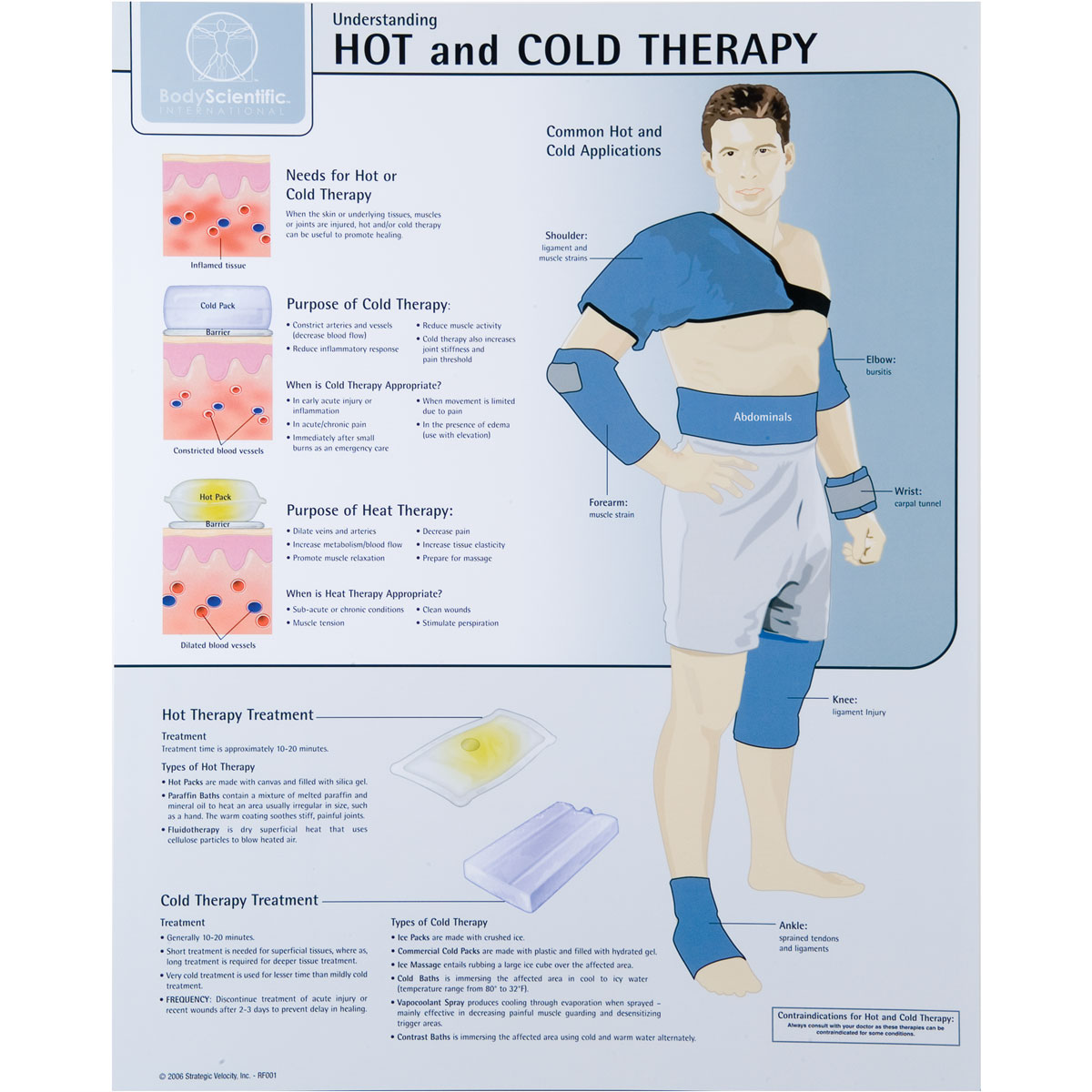 Hot And Cold Therapy Chart Laminated W59505 Denoyer