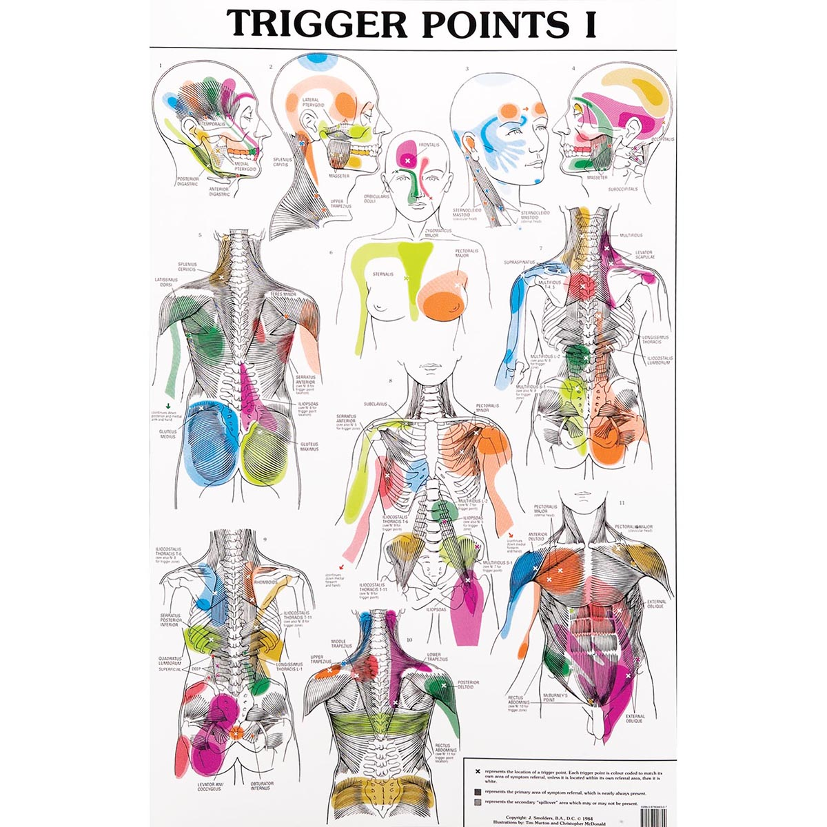 Set Of Trigger Point Charts W99990 Acupuncture 3b